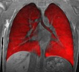 An MRI image of the lungs with inhaled hyperpolarized xenon gas.
