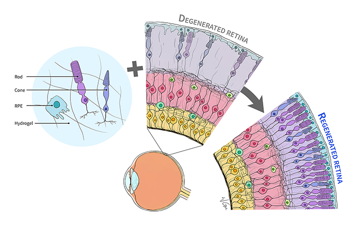 Illustration shows process by which stem-cell derived rods and cones could help regenerate the retina.