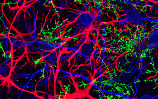 Microscope image of astrocytes, oligodendrocytes and neurons.